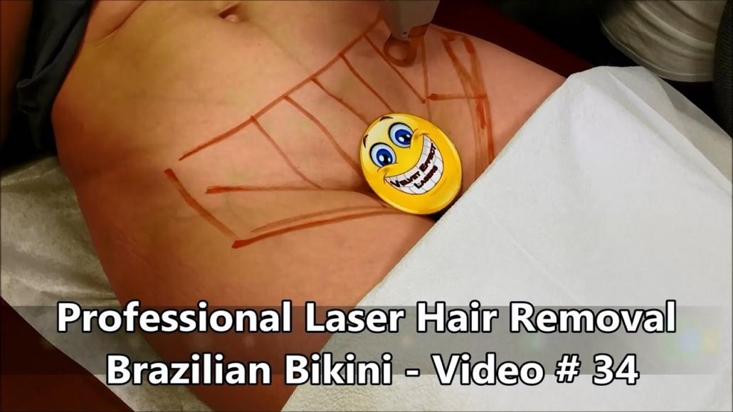 Professional Laser Hair Removal Brazilian Bikini Video 34